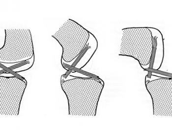 Cross section of the human knee showing the action of the cruciate (cruciform) ligaments as the knee is bent - Credit: After S Burgess (2008), Hallmarks of Design, DayOne, London