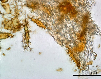 Red blood cells from fossil Duck-Billed Dinosaur